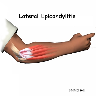 A Patient's Guide to Lateral Epicondylitis